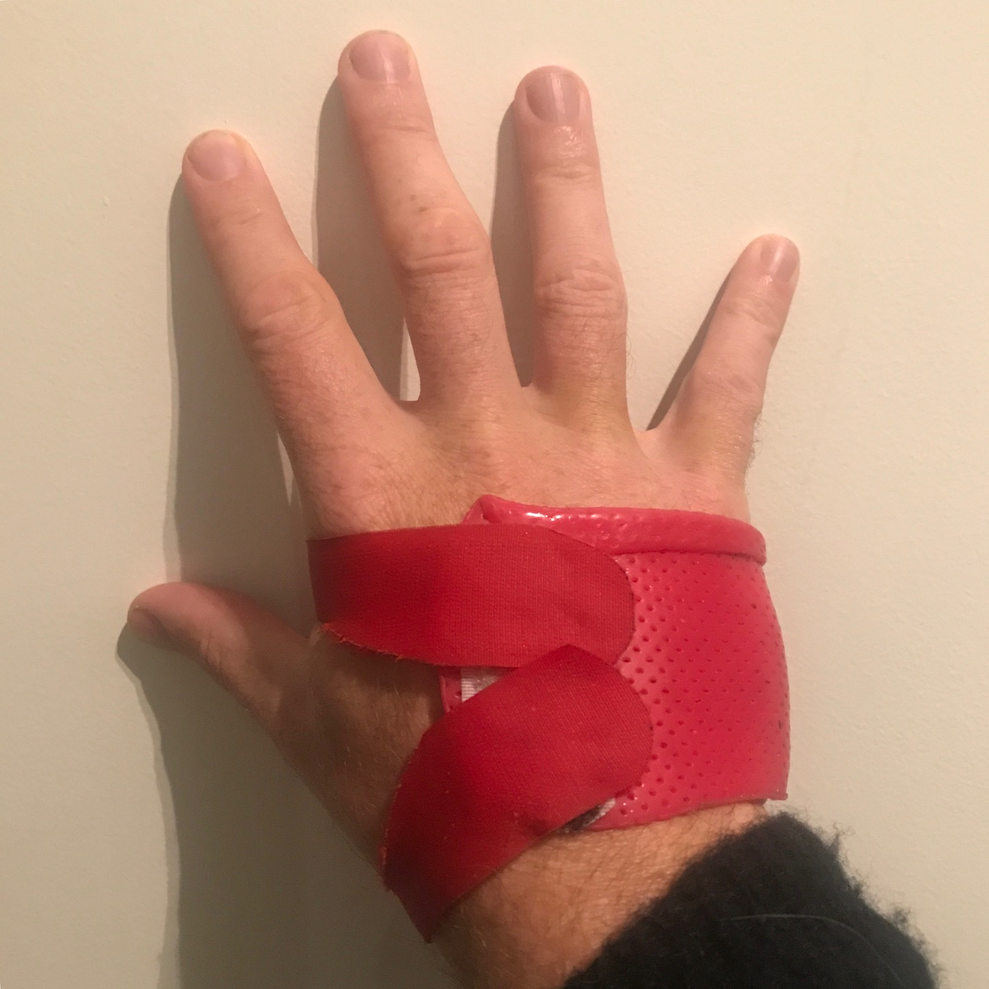 My RSI Catastophe (and How I Clawed My Way Back) — Andy